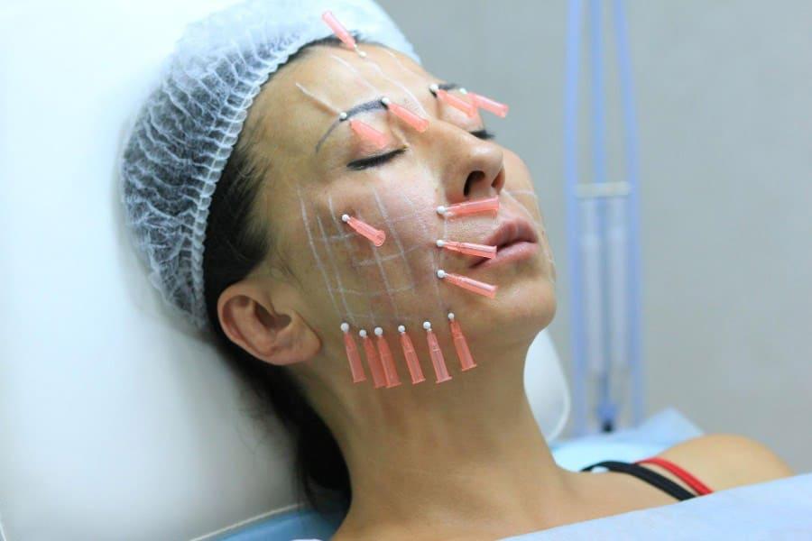 Уход за кожей лица: омоложение «золотыми нитями»