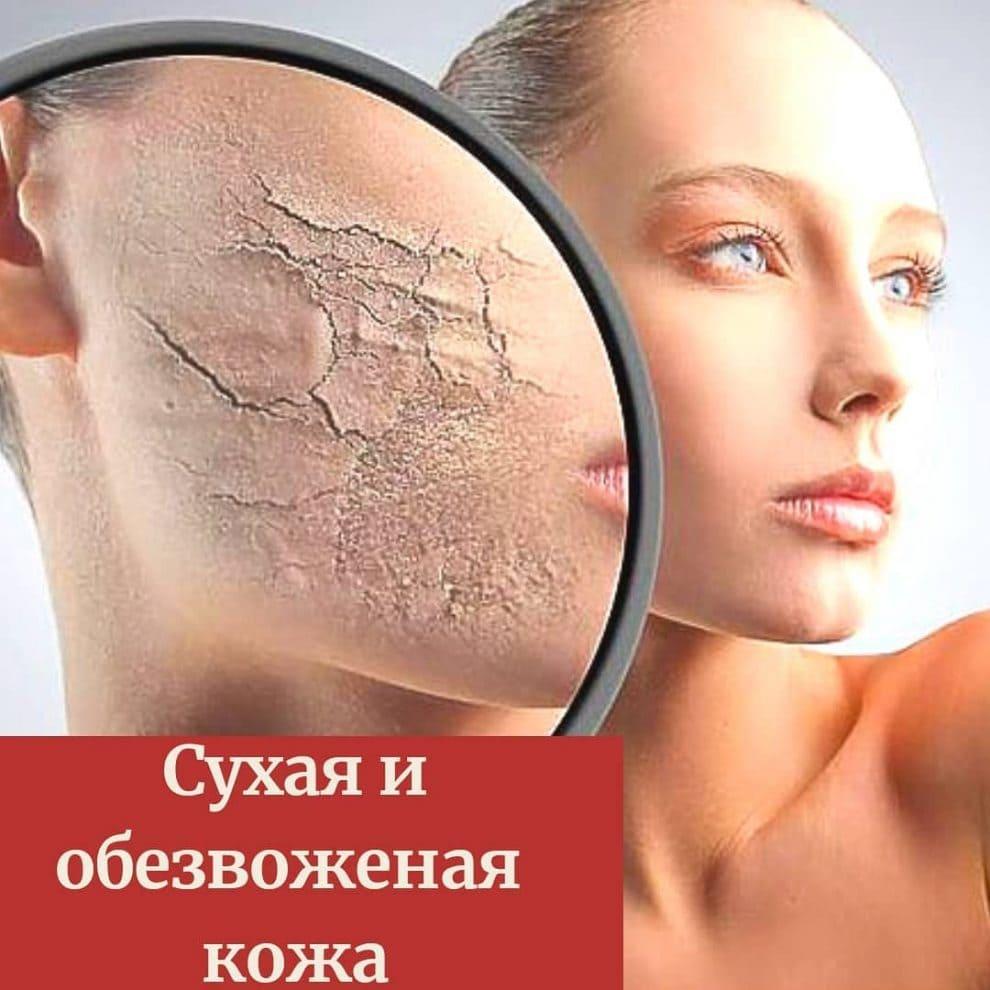 Сухая и обезвоженная кожа