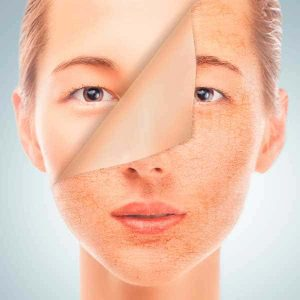 Правила ухода за сухой кожей лица