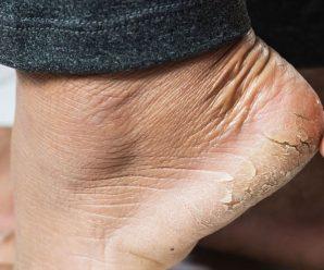 Как залечить трещины на пятках
