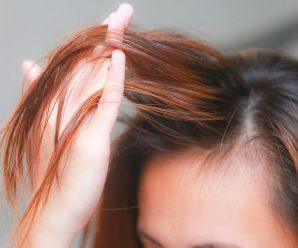 Волосы стали сухими! Помогут касторовые маски