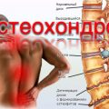 Какие бывают народные методы лечения остеохондроза?