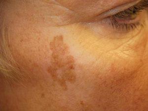 Пигментные пятна на лице – причина и лечение