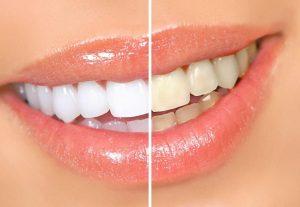 Домашнее отбеливание зубов, отзывы
