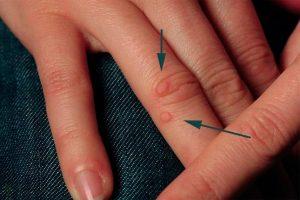 Как избавиться от бородавки на пальце – советы