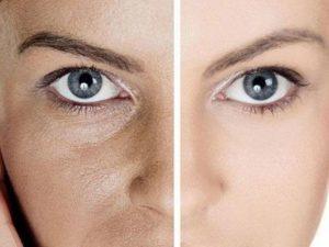 Как сузить поры на лице – 10 способов