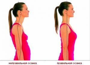 Правильная осанка — упражнения