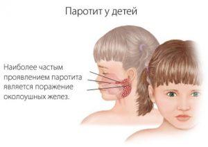 Эпидемический паротит у детей — это свинка