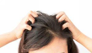 Зуд кожи головы – причины и лечение