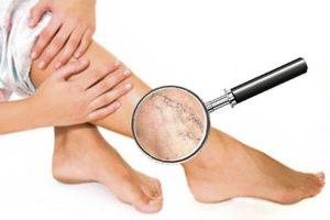 Обзор нескольких способов удаления варикоза на ногах