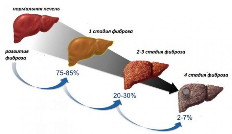 Цирроз печени: стадии