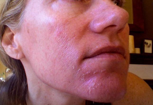 Причины покраснения и шелушения кожи на лице