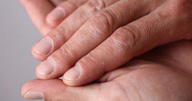 Почему шелушится кожа на пальцах рук